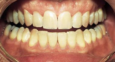 bilde før tannbleking